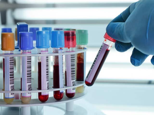 Numan Blood Testing